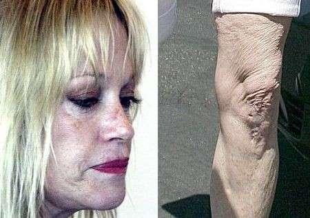 Vip: quando la chirurgia estetica fa danni