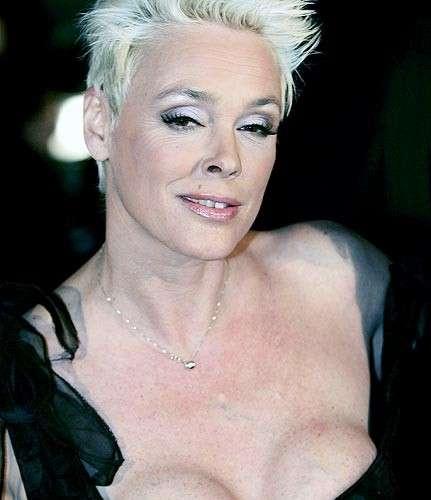 Brigitte Nielson: chirurgia plastica totale