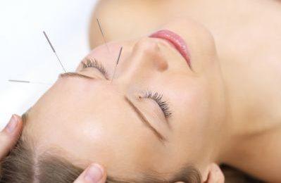 L'agopuntura per combattere i dolori mestruali