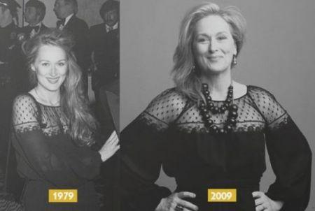 Meryl Streep: bellezza naturale o rifatta?
