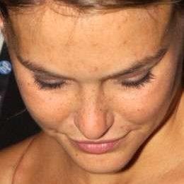 Anche le modelle hanno i brufoli: le foto di Bar Refaeli e i suoi puntini rossi