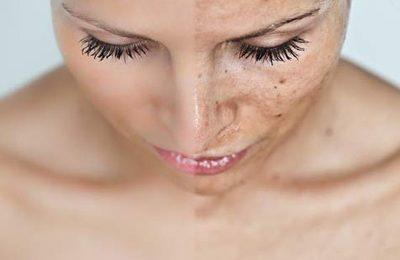 Macchie della pelle, come eliminarle con trattamenti estetici e rimedi naturali