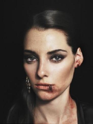 Modella ferita bocca