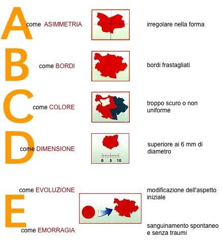 melanoma regola.abcde