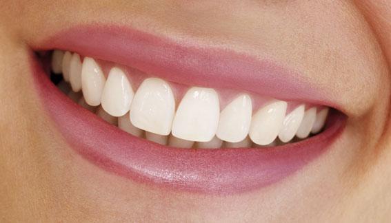 Come sbiancare i denti naturalmente