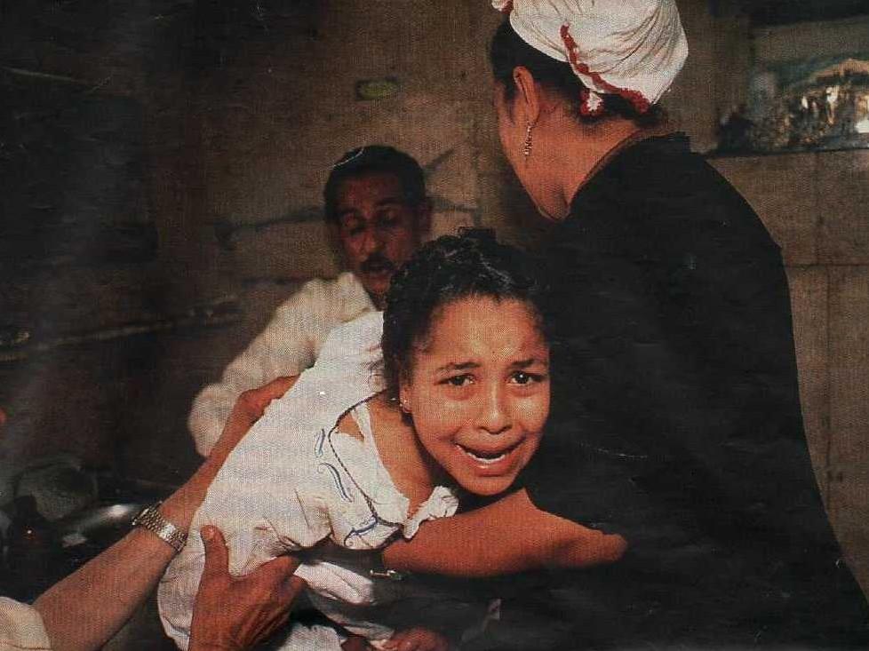 Mutilazioni genitali femminili, in Egitto una vittima di 13 anni