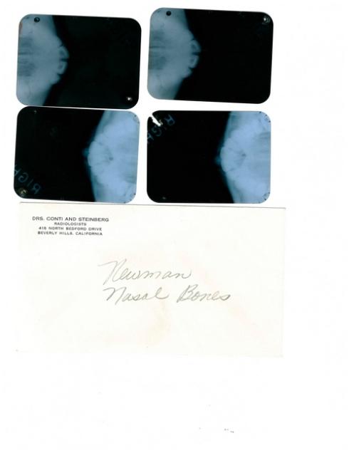 Radiografie Marilyn
