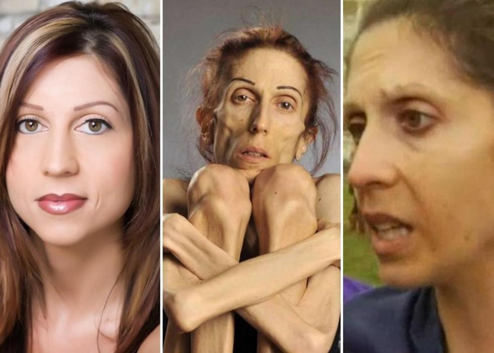 Rachael Farrokh vince la sua battaglia contro l'anoressia