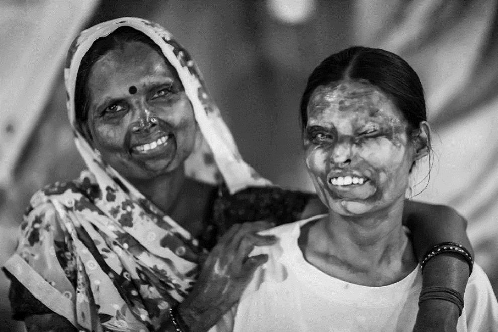 donne acido india