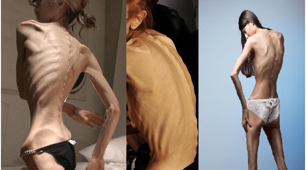 Blog Pro Anoressia: l'assurdità della malattia che viaggia in rete