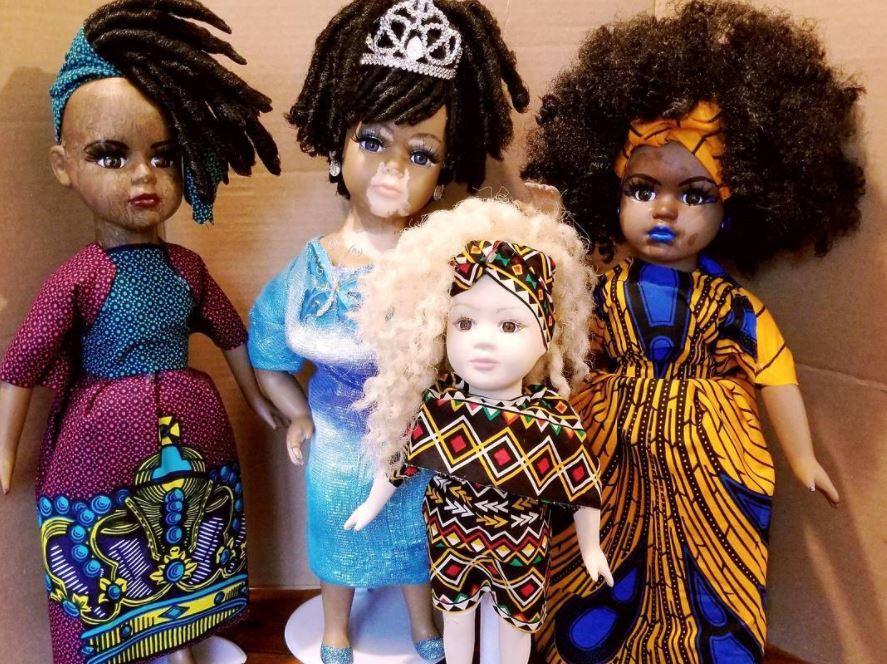 Bambole con la vitiligine: il simbolo di una bellezza diversa