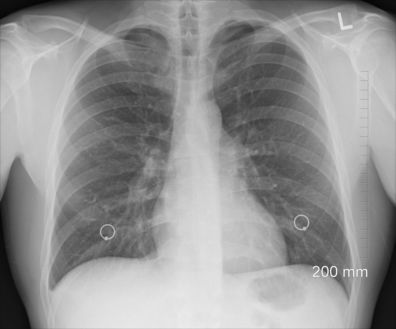 Trapianto di polmone infetto: il calvario di Elisa, morta di fibrosi cistica a 29 anni