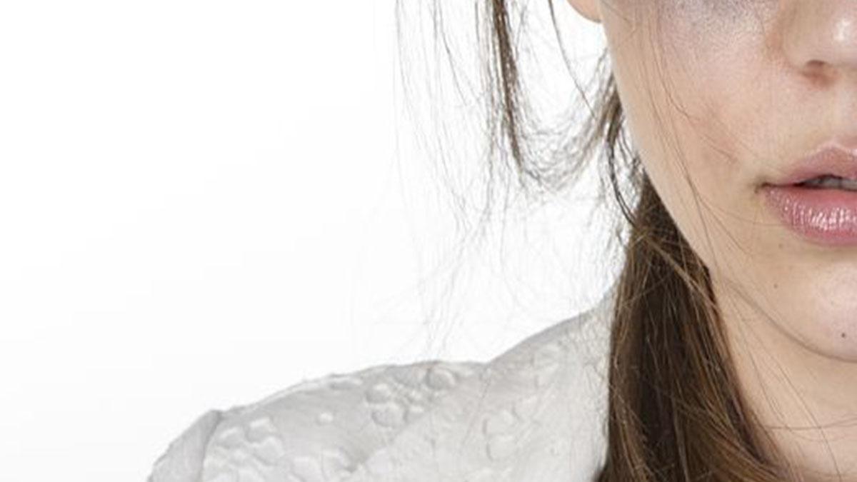 Filomena Lamberti, sfigurata dal marito: l'uomo è libero
