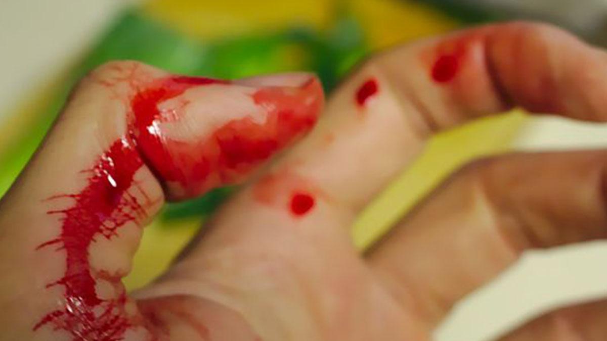 Fa le pulizie in casa e si ferisce lievemente: le mani diventano nere, dita in cancrena