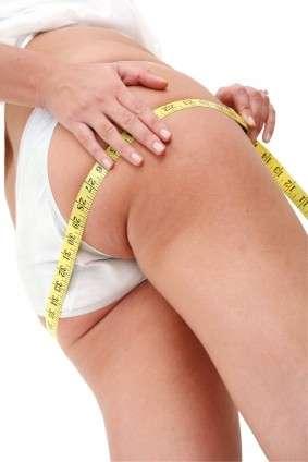 cellulite donne
