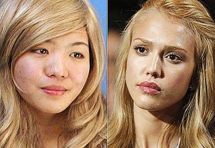 Chirurgia estetica per essere uguale a Jessica Alba