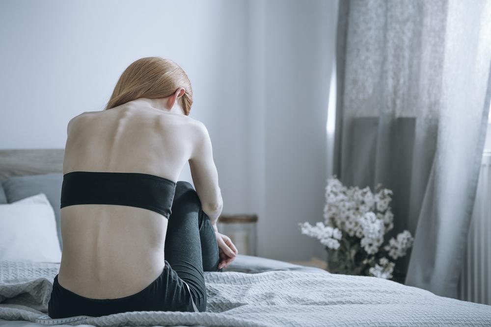Anoressia: sintomi, testimonianze e foto di chi ne ha sofferto [FOTO+VIDEO]