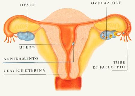 tumore delle ovaie
