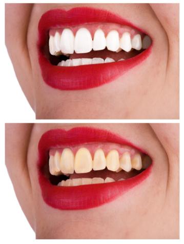 Cura dei denti smalto