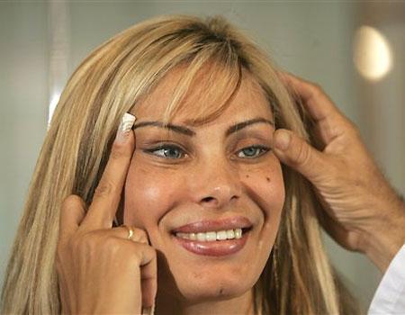 Chirurgia estetica, i ritocchi spesso fanno invecchiare