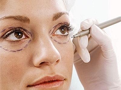 Chirurgia estetica, boom di ritocchi per le signore con più di 40 anni