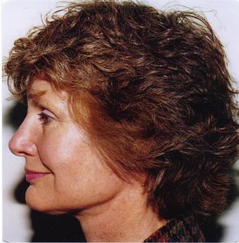 donna che si è sottoposta al lifting viso