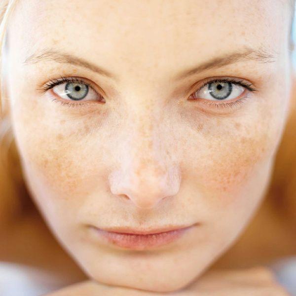 Macchie in gravidanza sul viso e sulla pelle: cause e rimedi