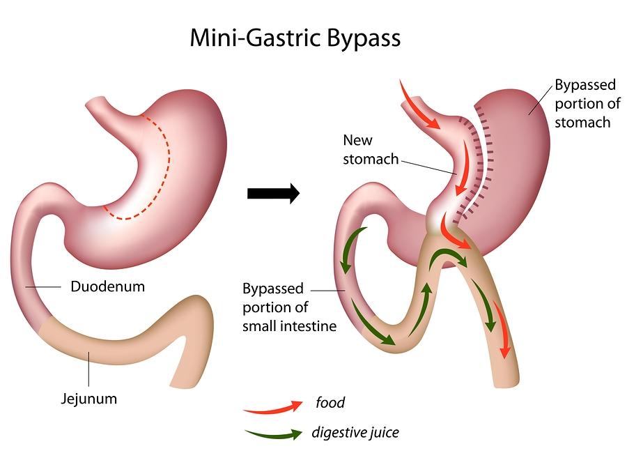 Bypass gastrico per dimagrire: come funziona?