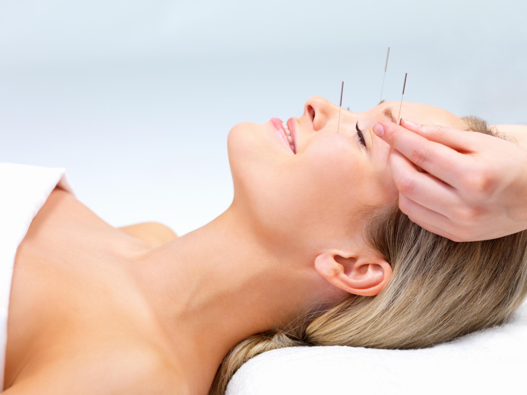 agopuntura benefici applicazioni