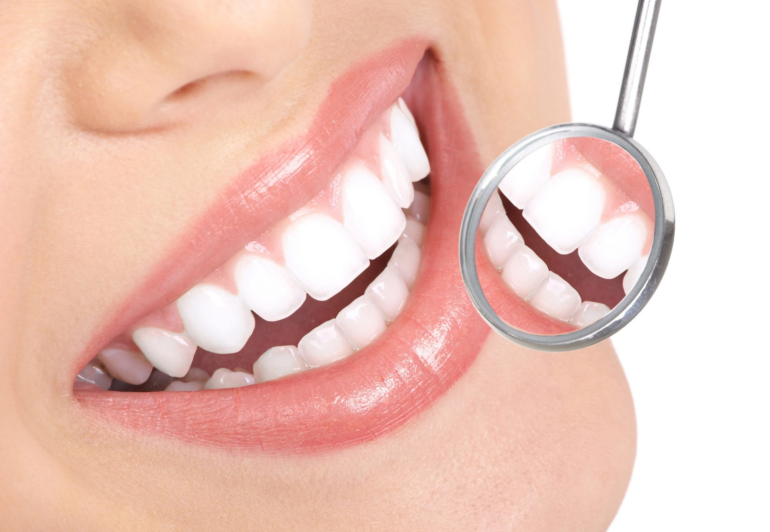 Parodontite: sintomi, rimedi e cura