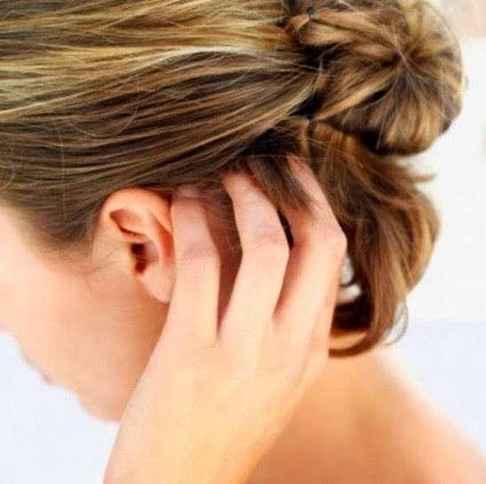 Tigna in gravidanza: sintomi e cure naturali [FOTO]
