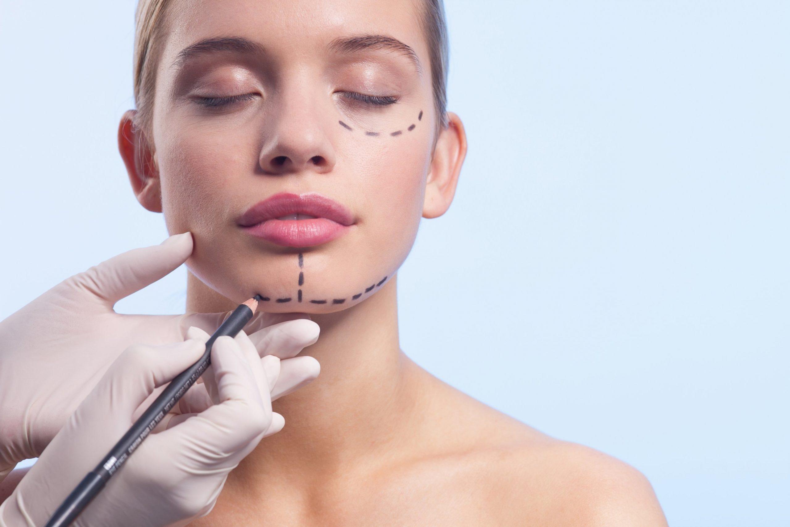 chirurgia estetica dopo divorzio