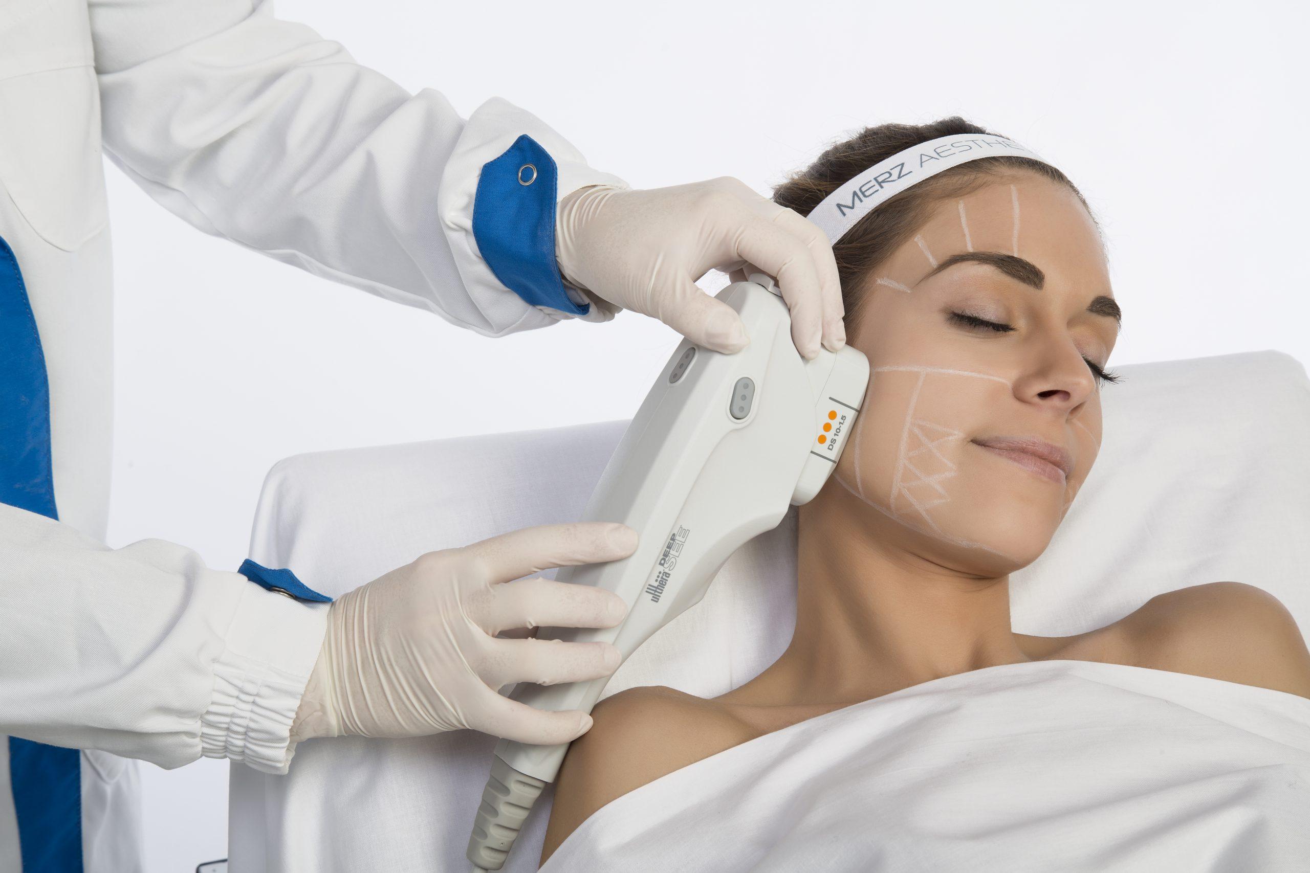 Ultherapy trattamento