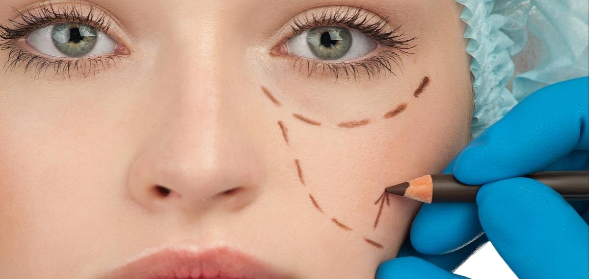 chirurgia estetica intervento