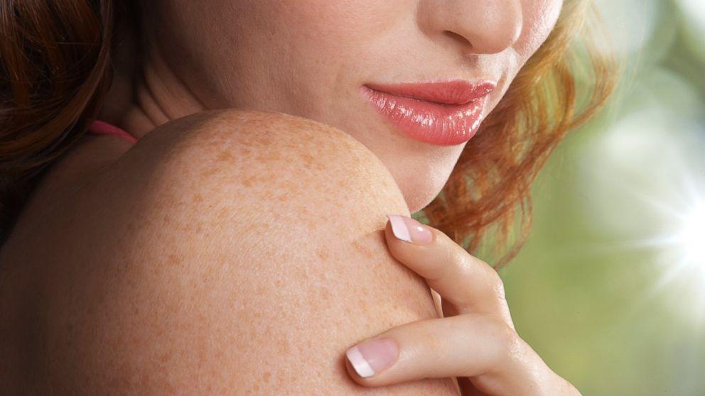 Cosa sai sulle malattie della pelle? [QUIZ]