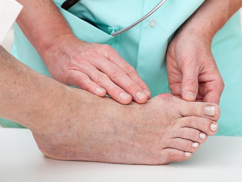 Alluce valgo: sintomi, rimedi, prevenzione e operazione