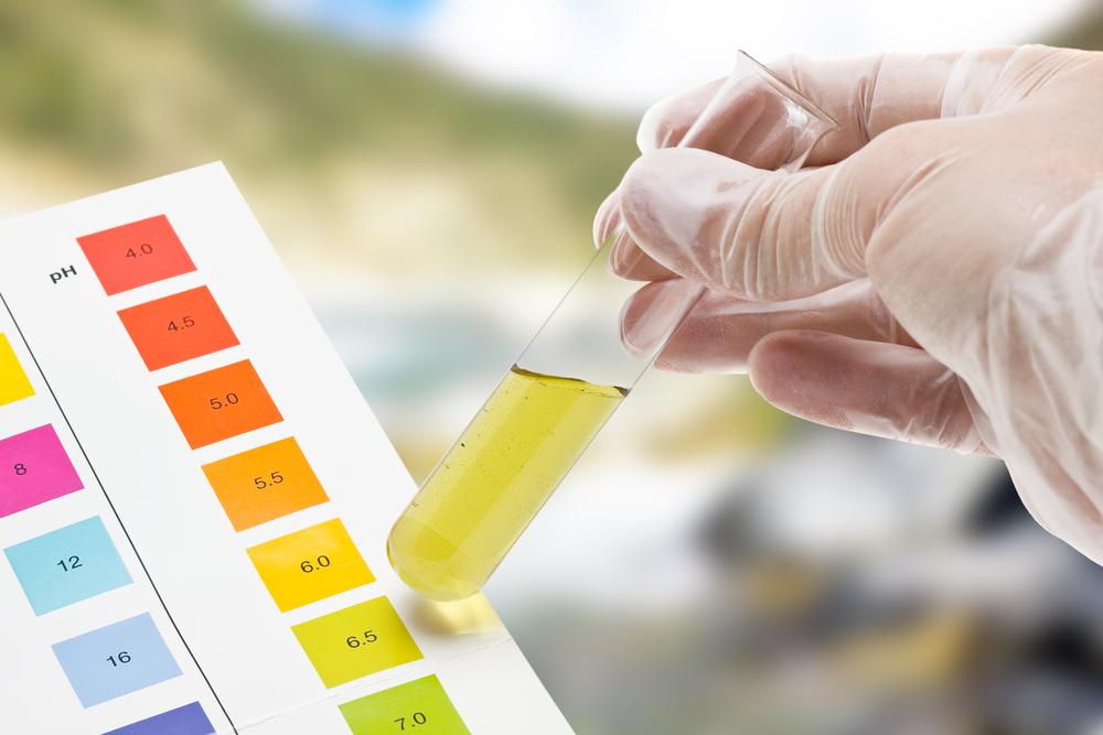 I valori delle analisi delle urine