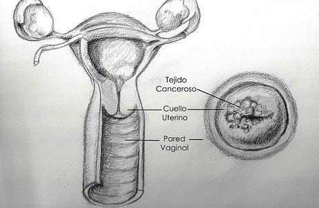 Tumore alla cervice uterina: sintomi, diagnosi, cause e cure