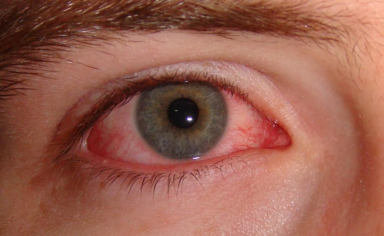 Congiuntivite: sintomi, cause e rimedi