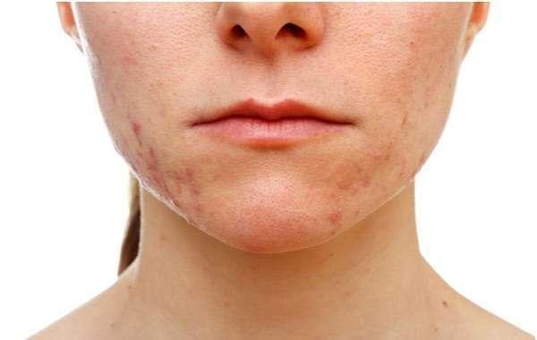 Acne ormonale