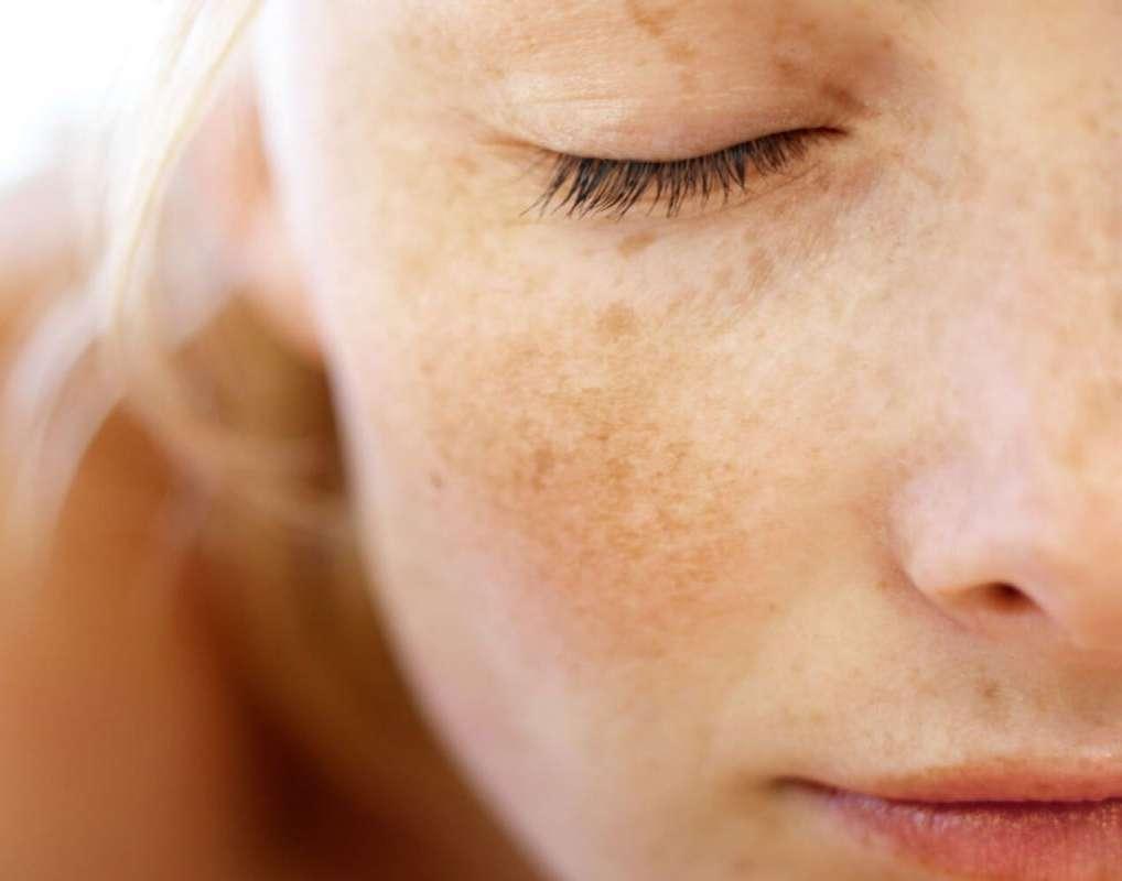 Cloasma (o melasma) gravidico: quando compare e come eliminarlo