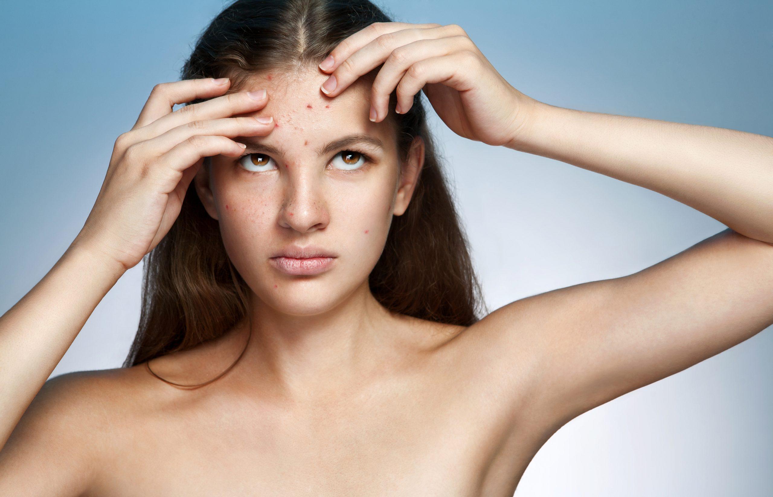 abbronzatura e acne