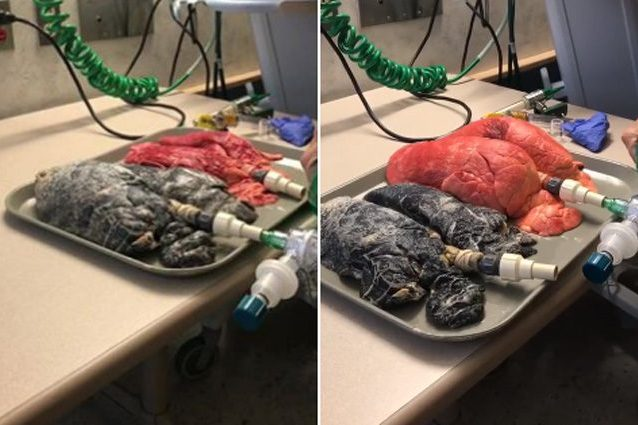 polmoni sani vs polmoni fumatore