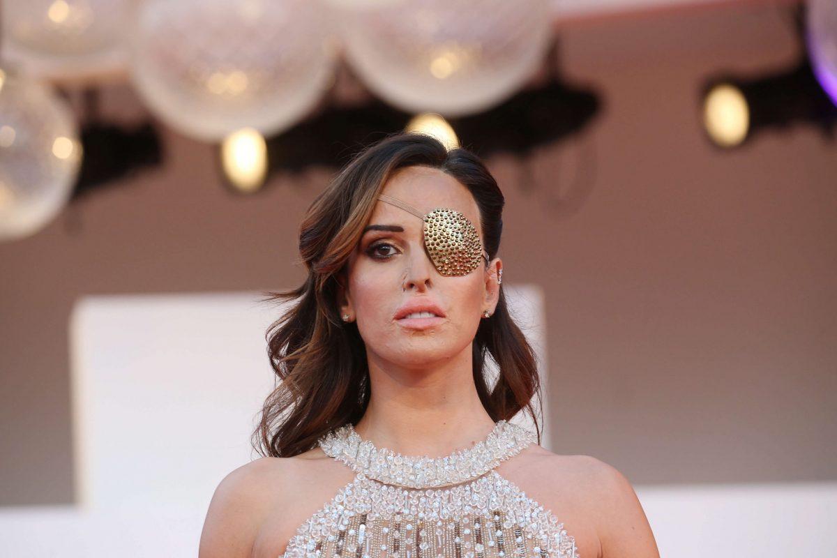 Gessica Notaro sul red carpet del festival di Venezia 2020 con un una benda dorata sull'occhio