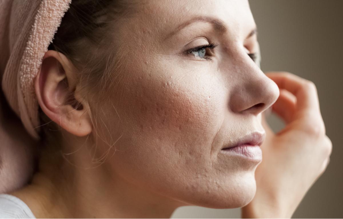 Donna con cicatrici da acne