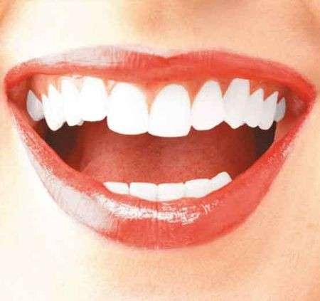 Denti: come averli bianchi