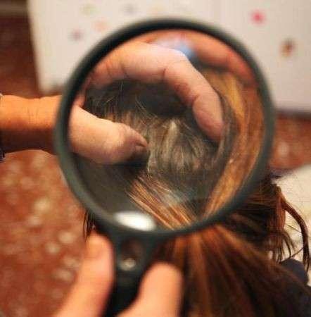 pidocchi capelli