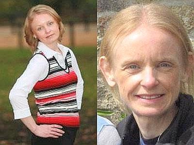 Anoressia: una donna è guarita guardando le sue fotografie