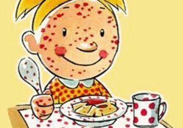 Intolleranze alimentari, il 20% degli inglesi crede di avere un'allergia