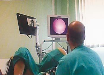Fibromi uterini: cosa sono, come si presentano come si curano